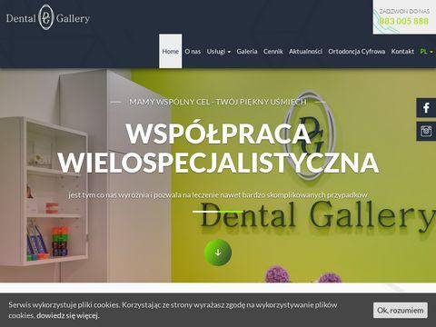 Dental-gallery.pl dentysta Bemowo